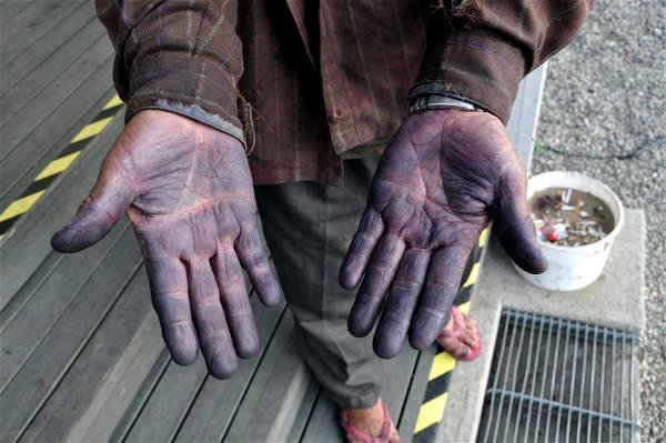 Blueberry<br>A Thai worker shows his blueberry-stained handsPhoto: Swedwatch