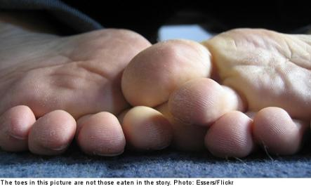 """<font size=""""5"""">Pojken the dog snacks on Swedish toes</font><br>A man paralysed from the waist down woke up one morning to find his pet dog had eaten his toes off, prompting doctors to amputate the man's leg.<br> <a href=""""http://www.thelocal.se/50770/20131014/"""" target=""""_blank""""> Click to read about the incident - and why he's keeping his dog.</a>"""