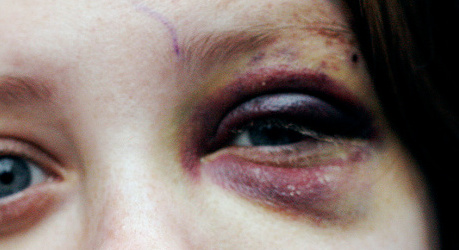 Sweden stands out in domestic violence study