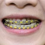 Massive jump in adult Swedes getting braces