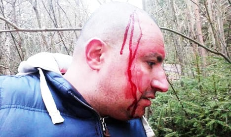 Swedish cop 'beat me up and used racial slurs'